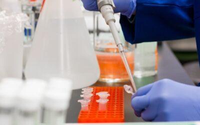 Antibody Test Kits as a Game-Changing Factor